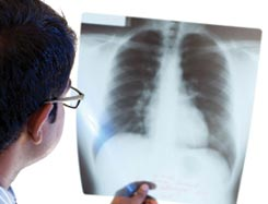 Pulmonology super speciality hospitals in hyderabad