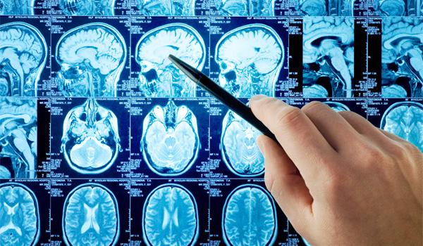Neurology Department