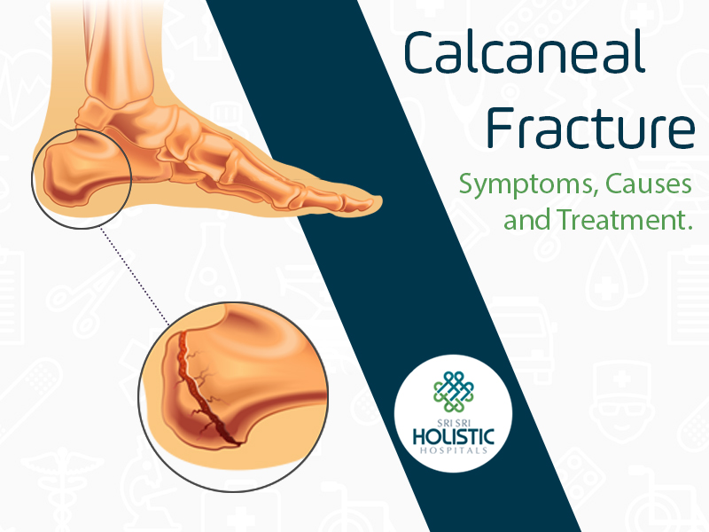 Calcaneal Fracture: Symptoms, Causes and Treatment