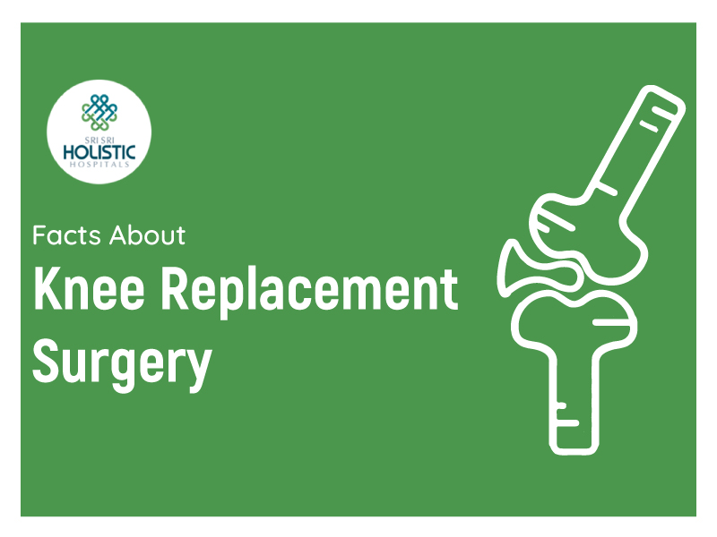 An Infographic On The Facts About Knee Replacement Surgery