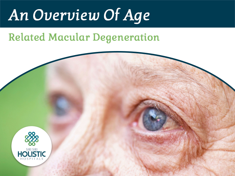 An Overview of Age-Related Macular Degeneration