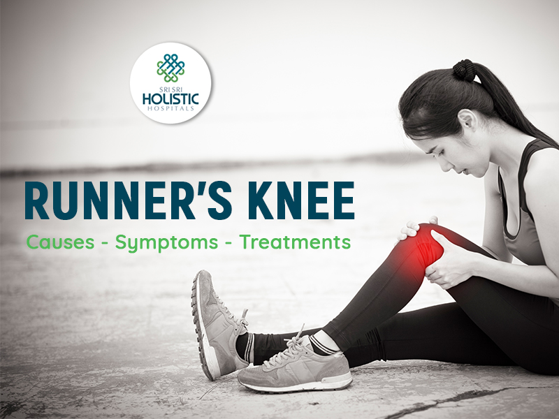 Everything You Should Know About Runner's Knee