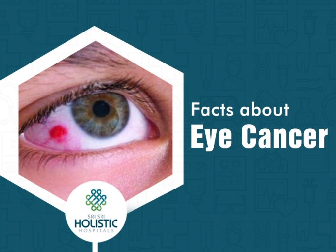 Facts about Eye Cancer