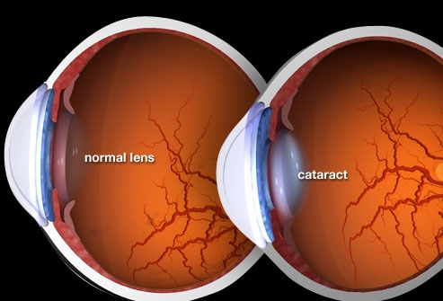 Myths and Facts about Cataract