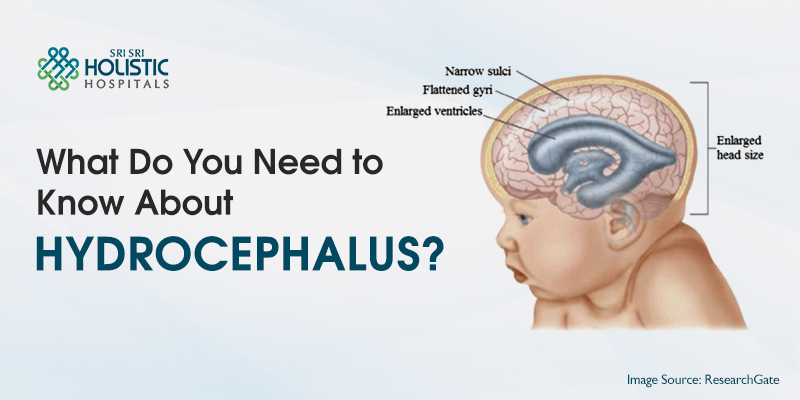 What Do You Need to Know About Hydrocephalus?