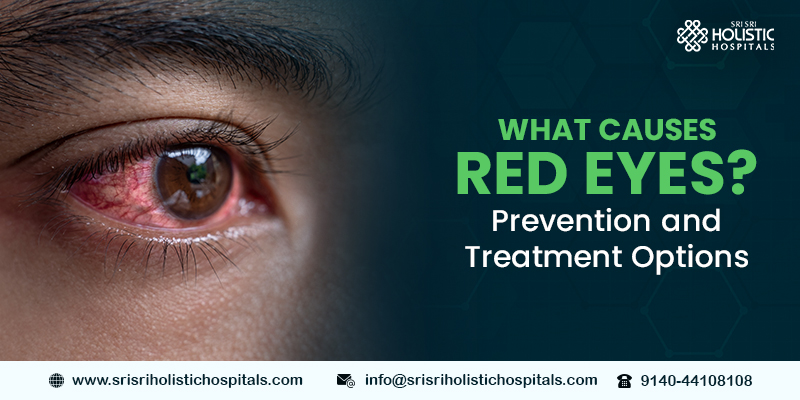 What Causes Red Eyes? Prevention and Treatment Options