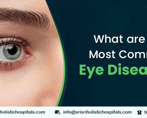 What are the Most Common Eye Diseases
