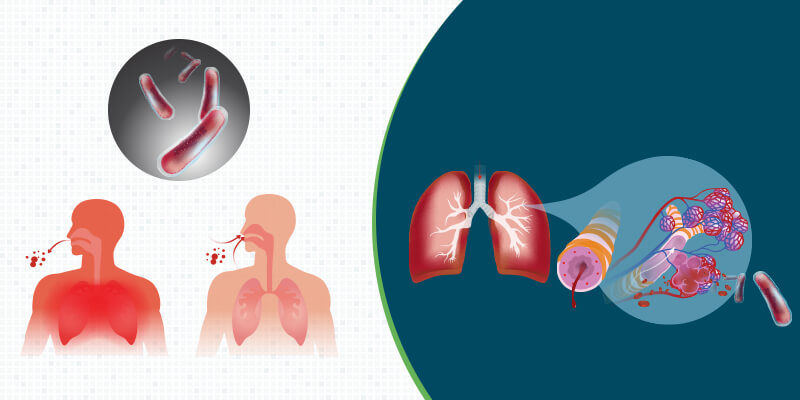 How is TB detected in lungs