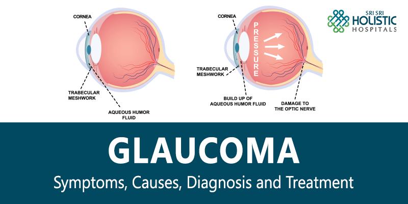 Glaucoma – Symptoms, Causes, Diagnosis and Treatment