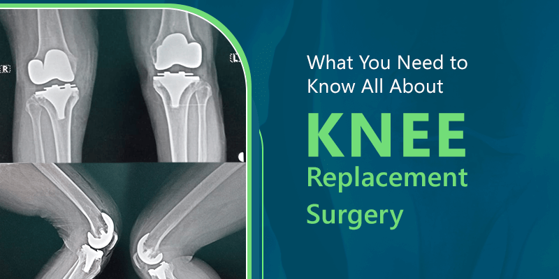 What You Need to Know All About Knee Replacement Surgery