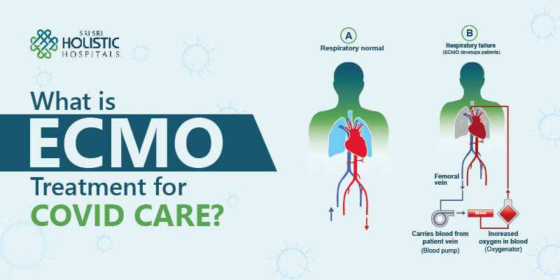 What is ECMO Treatment for COVID Care?